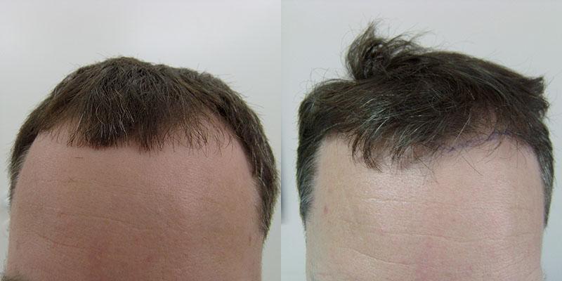 Пересадка волос красноярск цена