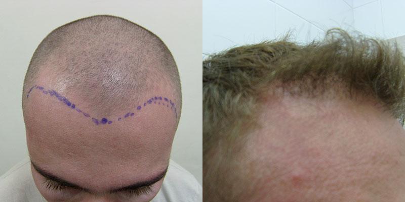 В новосибирске пересадка волос